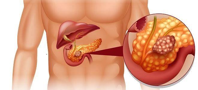 Поджелудочная железа и сахарный диабет симптомы лечение